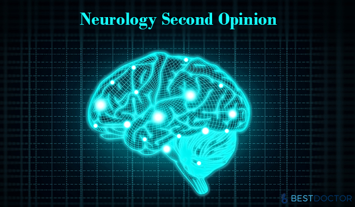 8 Conditions that Require Neurology Second Opinion