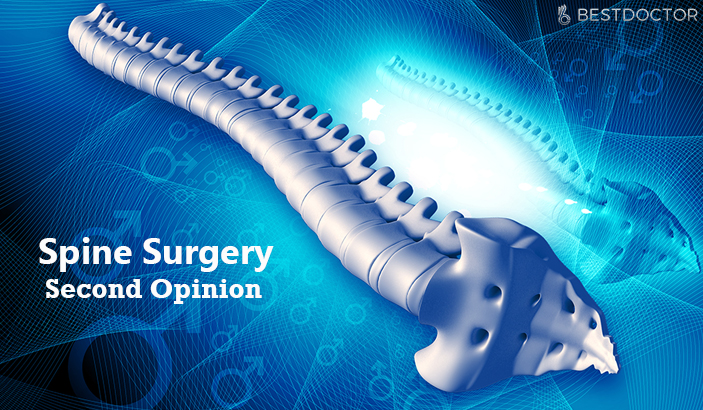 Spine Surgery Second Opinion – Reasons and Surgeries that Call for it
