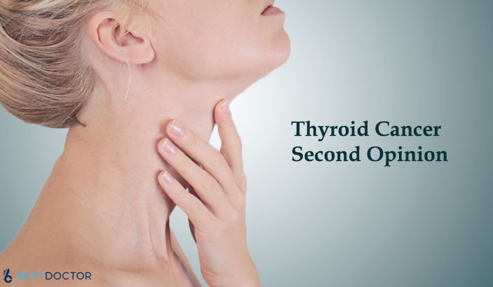 Are You Diagnosed with Thyroid Cancer? Take a Second Opinion