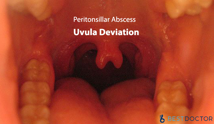 Uvula Deviation Causes, Symptoms, Diagnosis and Online Medical Help