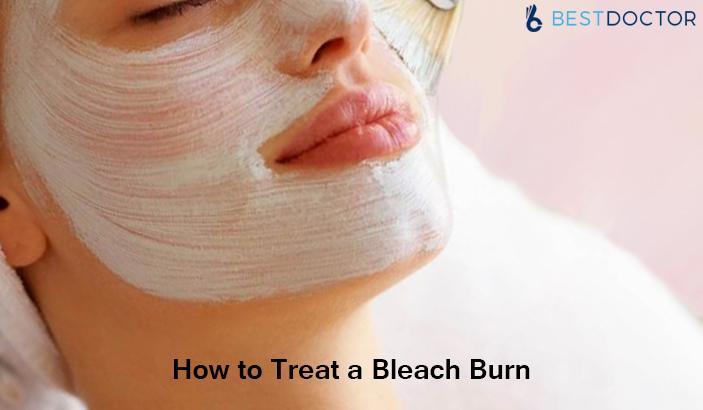 How Long Do Bleach Burns Last? Treatment for Bleach Burn