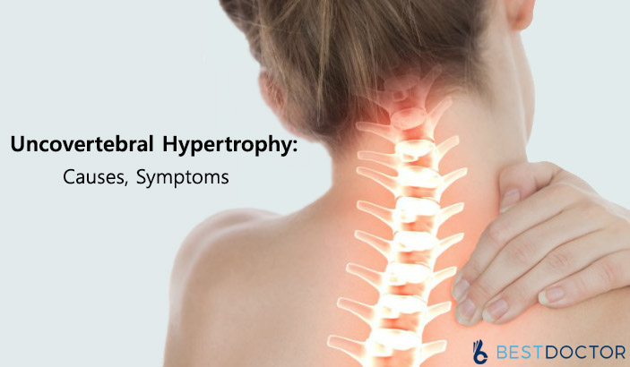 Uncovertebral hypertrophy: Causes, Symptoms and Treatment