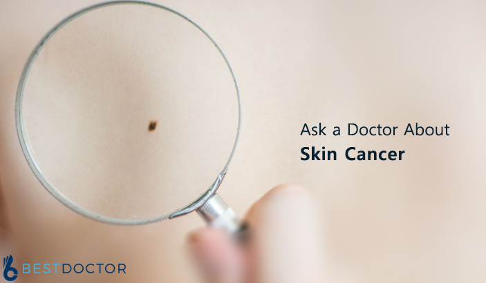 Ask a Doctor About skin cancer