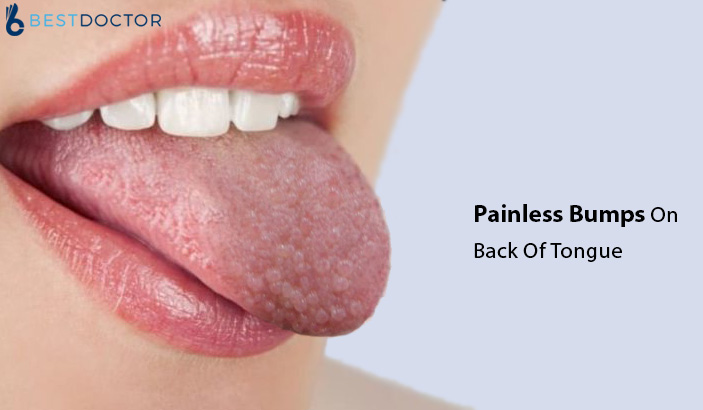 Painless Bumps On Back Of Tongue