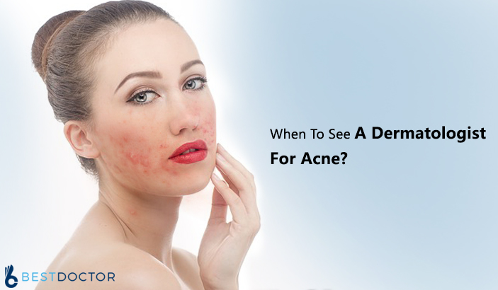 When To See A Dermatologist For Acne?