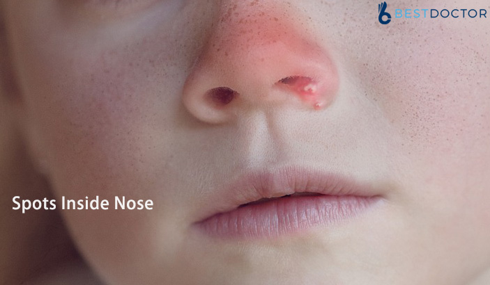 Spots Inside Nose – Causes, Signs, Diagnosis and Treatment
