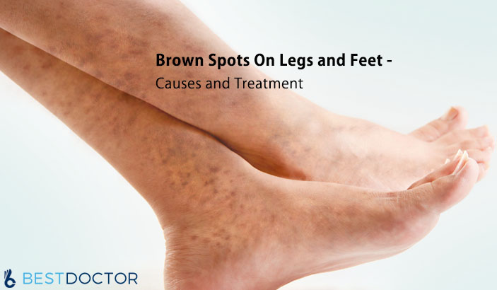 What Causes Brown Spots On Legs and Feet?