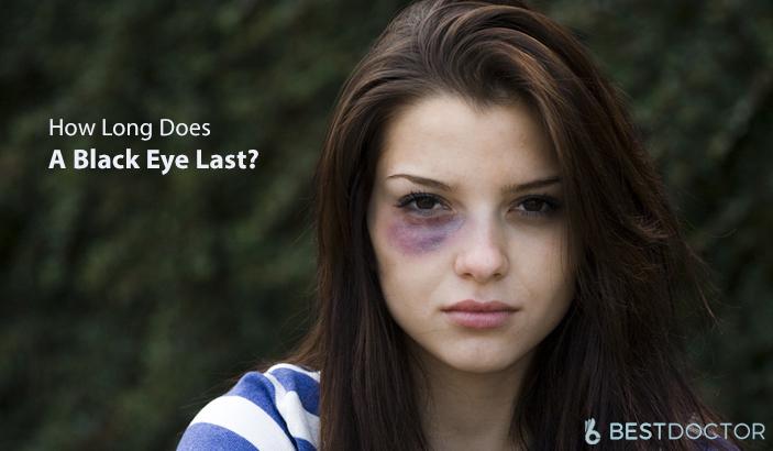 How Long Does A Black Eye Last?