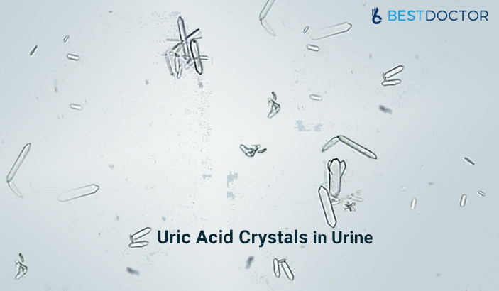 Uric Acid Crystals in Urine
