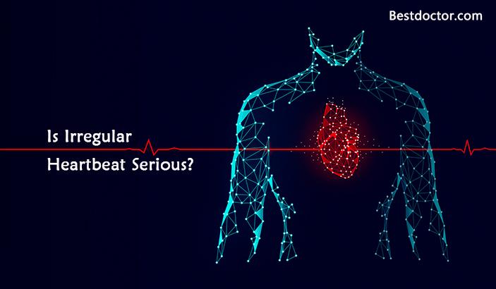 Is Irregular Heartbeat Serious