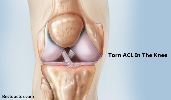 Torn ACL In The Knee