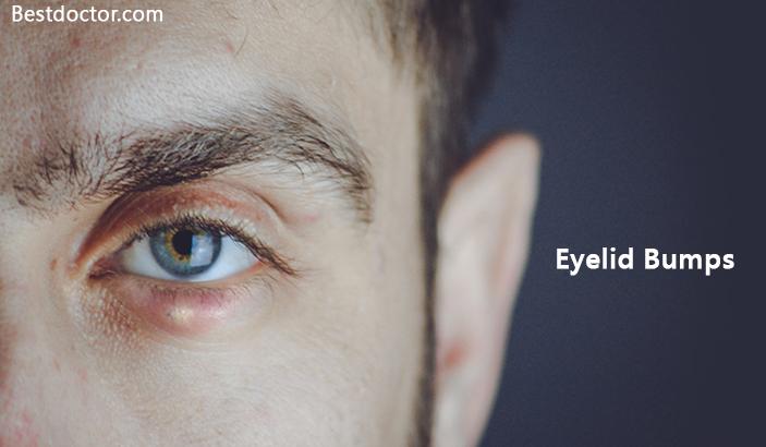Eyelid Bump