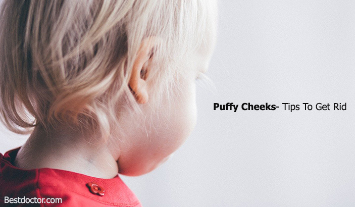 Puffy Cheeks- Tips To Get Rid
