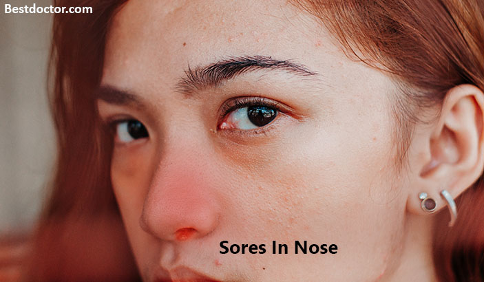 Sores In Nose