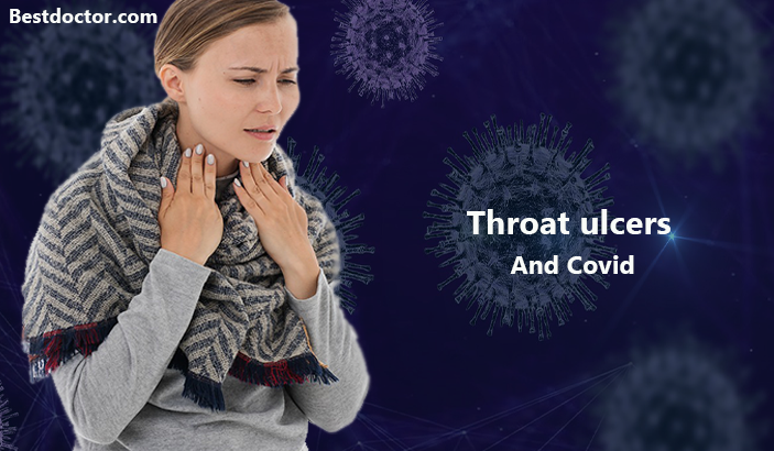 Throat ulcers And Covid